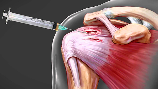 Do steroids help injuries heal how to buy needles for steroids