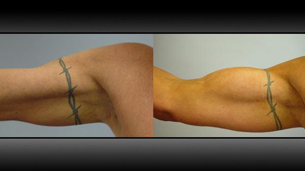 Biceps Implants