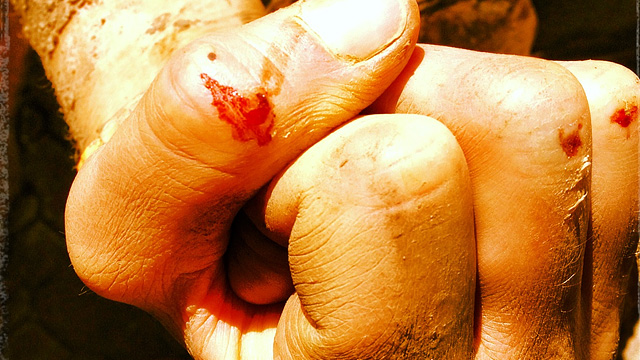 Bleeding Hands