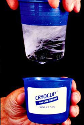 CryoCup