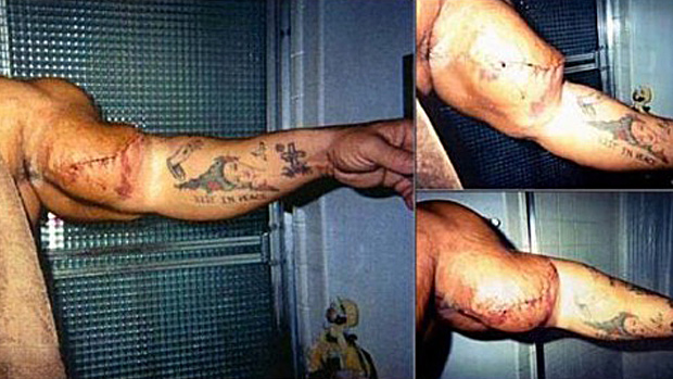Exploded Arm