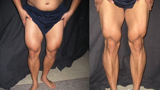 Legs-after-before