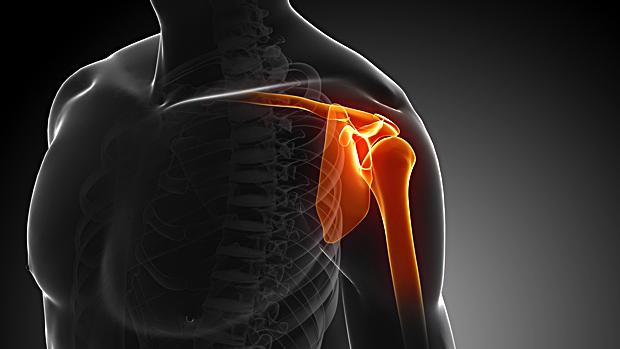 Shoulder Pain Center