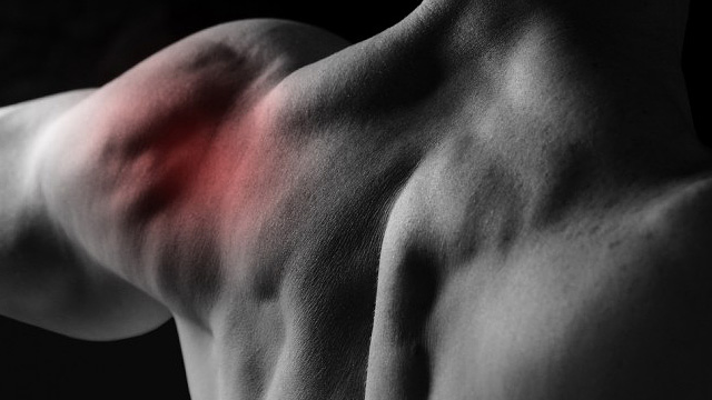 Shoulder Inflammation