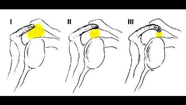 Shoulder Types