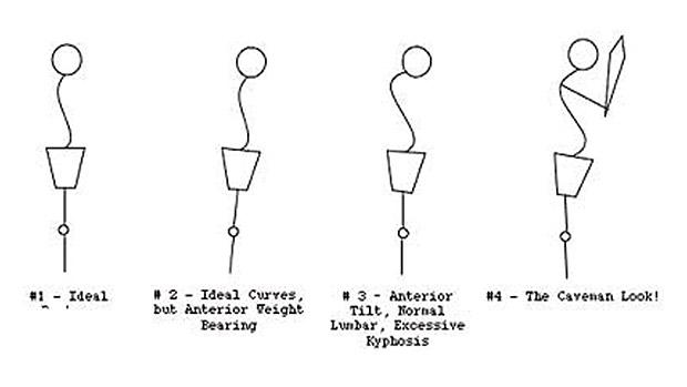 Side Postures