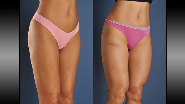 Thigh Implants