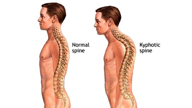 What is Kyphosis