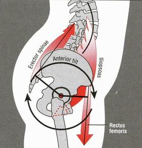 anterior-tilt