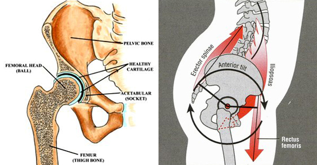 Hip Structure