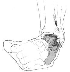 inversion sprain