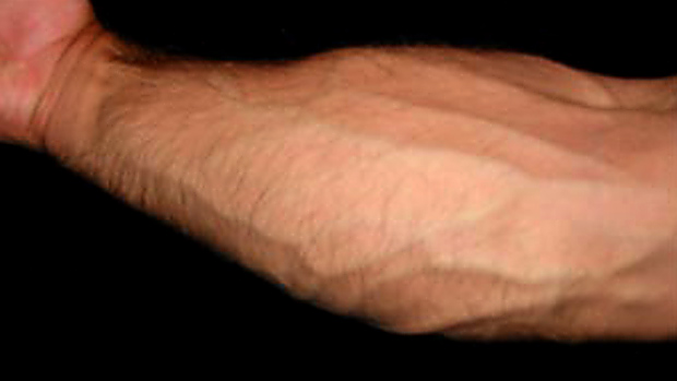 strong forearm
