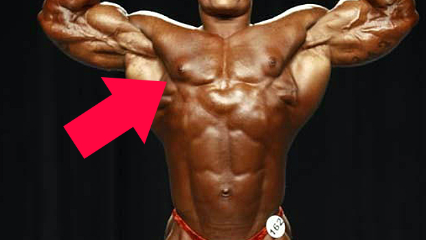 How to cure gynecomastia from steroids steroids in pregnancy for lung development side effects