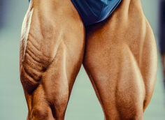 How to Build Strong Quads, Even With Bad Knees