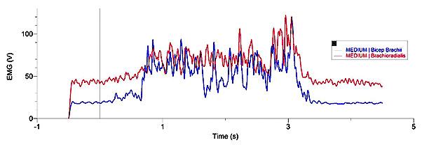 EMG Chart